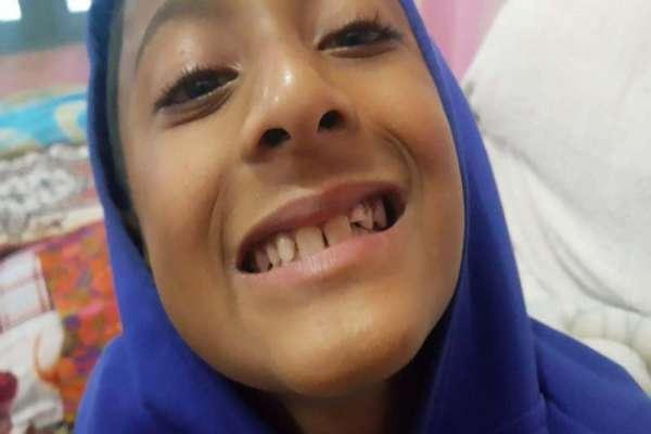 गुल्मीमा शिक्षिकाले विद्यार्थीको दाँत नै झर्ने गरी कुटिन