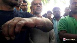 भारतीय एसएसबिको कुटाईबाट दुई नेपाली युवा घाइते